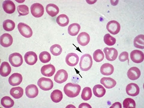 Pediatric Hematology Board Review Mp3