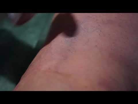 Quello che è thrombophlebitis di gambe