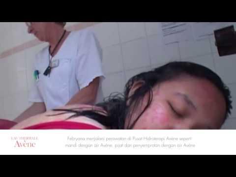 Bei der Behandlung atopitscheskogo der Hautentzündung die Volksmittel
