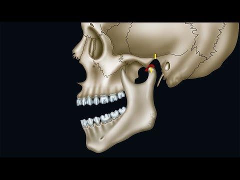 Brustwirbelsäule Verletzung