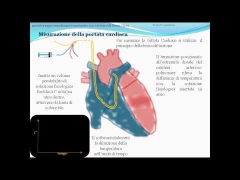 Ipertensione 2 step rischio 1 grado 4