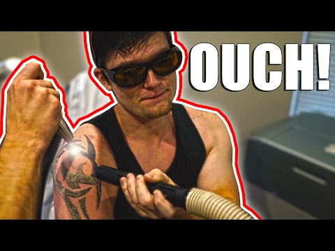 THIS HURT SO BAD | Laser Tattoo Removal