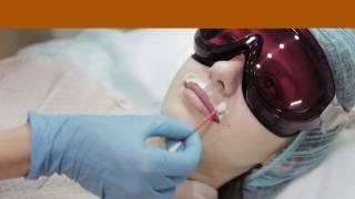 АГГЕР. Лазерная эпиляция верхней губы (усики). Как данная процедура проводится в наших центрах.