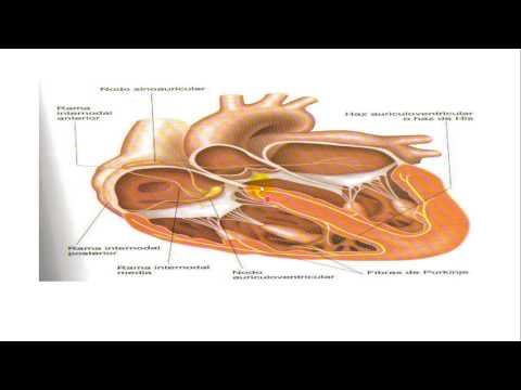 Cambios de fondo de ojo hipertónicas