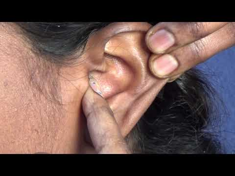 How To Wear And Remove CIC (Completely In the Canal) Hearing Aid