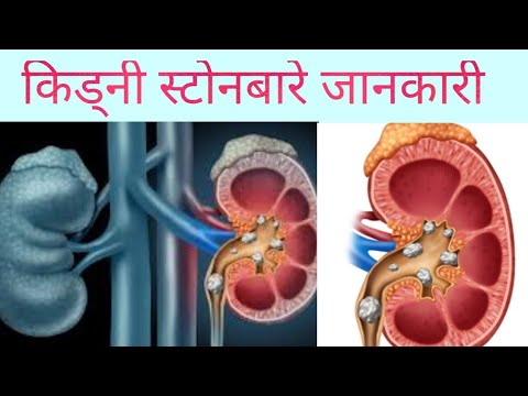 Kidney stone in Nepali  doctor sathi  Dr Bhupendra shah
