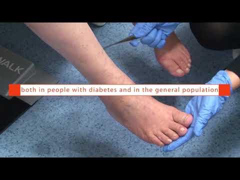 Orice fizioterapie pentru pacientii cu diabet zaharat