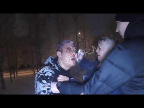 Пьяная драка, разбитое лицо, семейная ссора в Сургуте