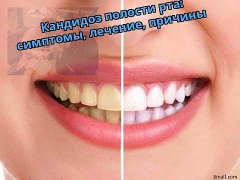 Кандидоз полости рта: симптомы, лечение, причины
