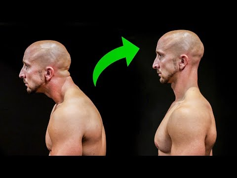 Fix Your Posture In Just 5 Minutes!