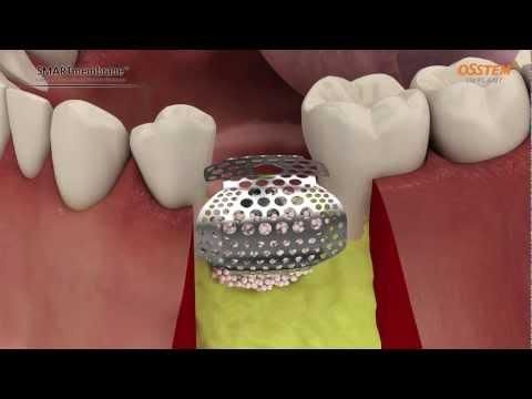 OssBuilder/SmartBuilder. Osstem Implant. Kompodent