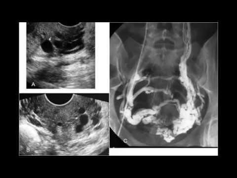 Crema pentru femeile însărcinate din varicoză