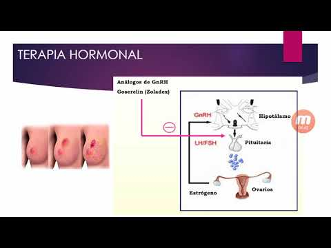 Ehopriznaki cambios difusas de la próstata es