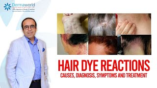 Hair dye reactions : Causes, Diagnosis, Symptoms and Treatment