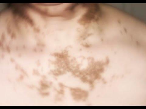 Sintomi delleczema cominciato