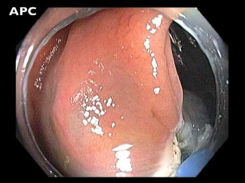 Ascending Colon - Management of Flat Lesion