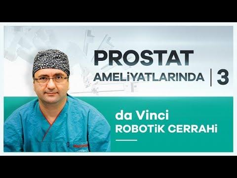 da Vinci Robotik Cerrahi ile Prostat Kanseri Ameliyatı-