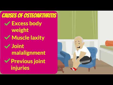 Osteoarthritis and Joint Pain Symptoms, Causes, Tips