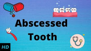 Abscessed tooth, Causes, SIgns and Symptoms, Diagnosis and Treatment