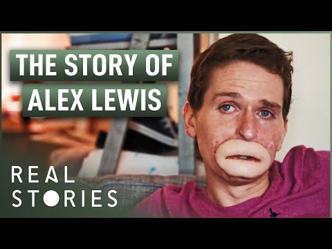 The Extraordinary Case Of Alex Lewis (2016) The story of a man who has lost all four limbs and part of his face after contracting Toxic Shock Syndrome.