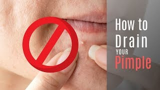 How to Drain Your Pimple to Get Rid of a Popped Pimple Scab Fast!