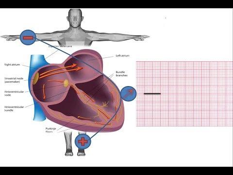 Iš ką žmogus hipertenzijos