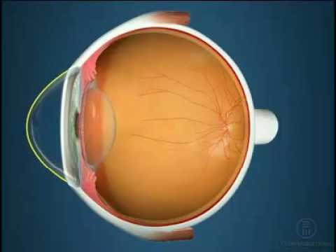 Ночные линзы для восстановления зрения кемерово