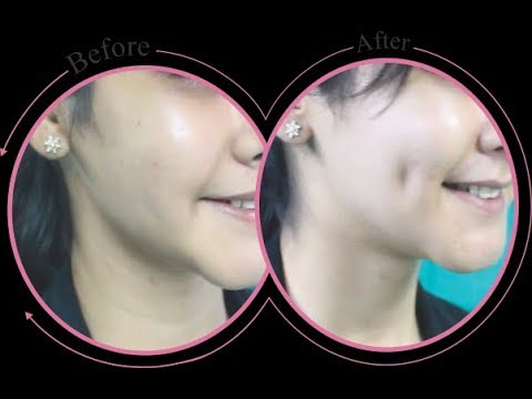 Get Dimples Naturally in 30 Minuts