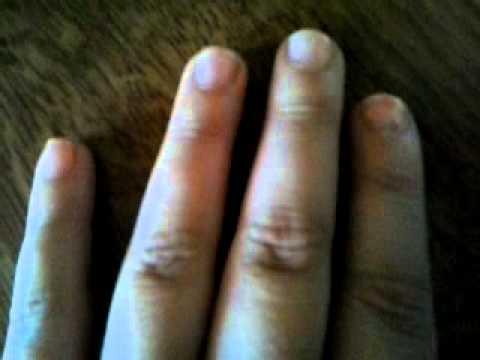 Malattia di unghie su trattamento di mani da rimedi di gente