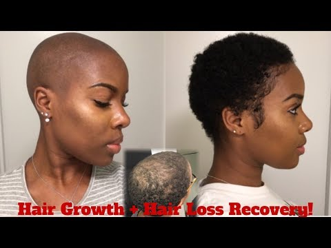 4 Month Update! | Hair Regrowth After HAIR LOSS + Current Hair Care Routine | #GrowWithMe | Nia Hope