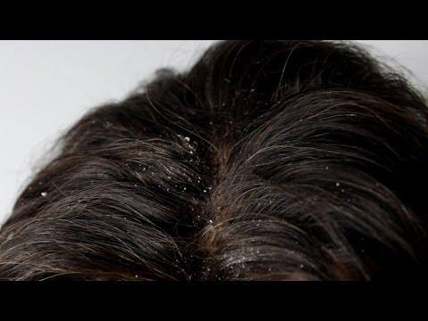 Atopitchesky la dermatite et la fermeture chez lenfant