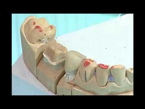 Смертельные болезни суставов