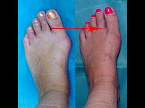 Массаж на косточку на большом пальце ноги