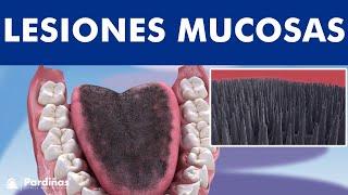 Liquen plano, leucoplasias, lengua geográfica y otras lesiones de mucosa oral ©