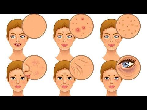 Die grossen Poren auf der Person die Behandlung