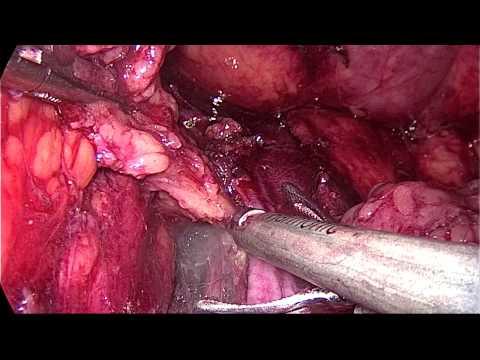 Papillomavirus en cas de grossesse