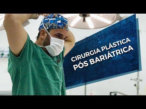 Entre Nós - Cirurgia Plástica Pós Bariátrica