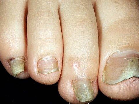Die ergebnisreichen Präparate gegen gribka auf den Nägeln