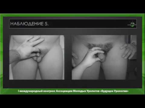 Сокольщик М М - Сексуальная реабилитация пациентов с гипогонадизмом