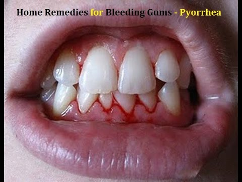Video Bleeding Gums Home Remedies - Pyorrhea - Gingivitis