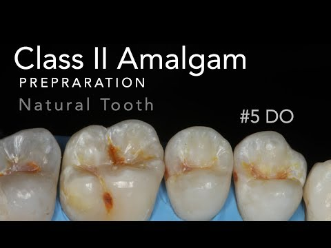 Class II Amalgam Prep - #5 DO Natural Tooth