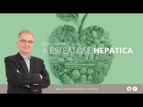 Remoção de medicina de dependência alcoólica