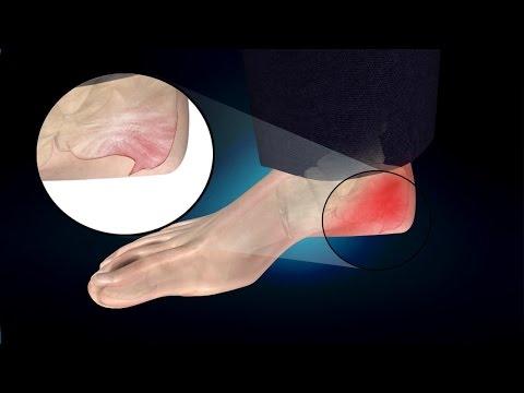 Video Heel Spur or Calcaneal Spur: Treatment, Causes, Symptoms, Prevention