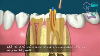 عصب کشی دندان | دندانپزشکی سیمادنت