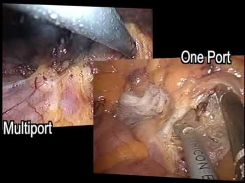 Single Access Laparoscopic Colorectal Surgery
