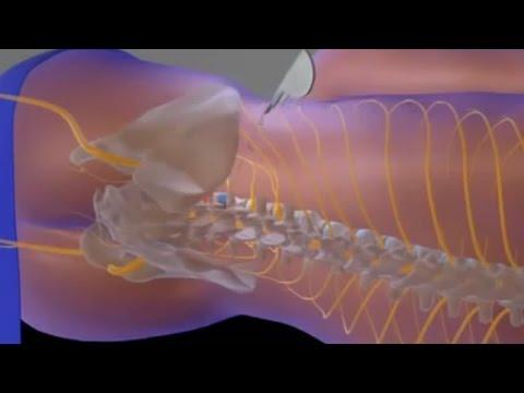 Posizione di ammaccature di varicosity