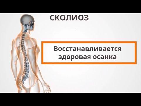 Кифоз мышцы спины