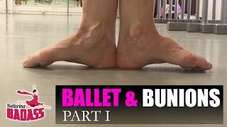 Ballet & Bunions Part I: How To Stretch, Strengthen, & Prevent Pain with Ballerina Badass