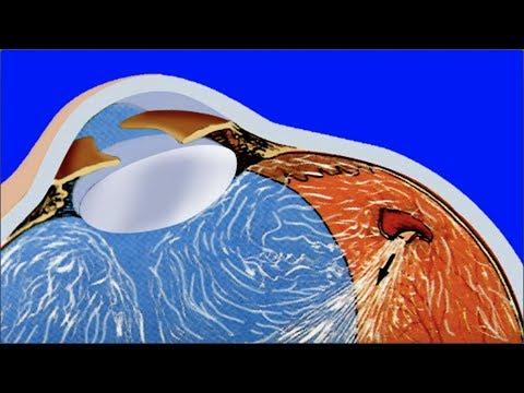 La crème pour les yeux souper des oedèmes et les bleus