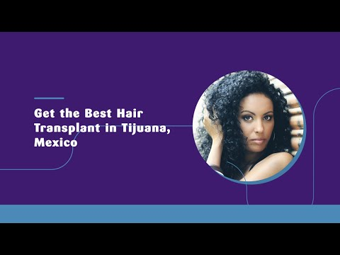 Get the Best Hair Transplant in Tijuana, Mexico